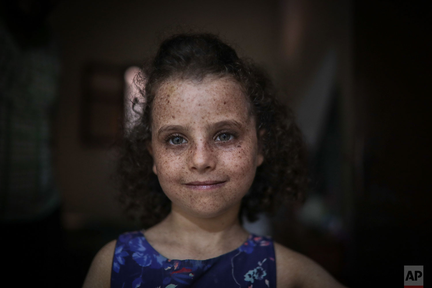 In this Tuesday, July 23, 2019 photo, Romaisae, 6, who is affected by a rare disorder called xeroderma pigmentosum, or XP, poses for a portrait in her home in the town of Sale, near Rabat, Morocco. (AP Photo/Mosa'ab Elshamy)