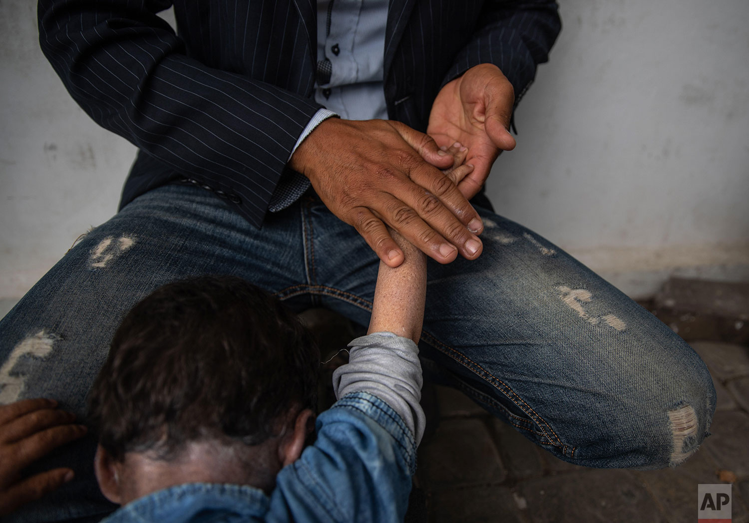 In this Wednesday, July 24, 2019 photo, a father applies a cream on the arms and neck of his child who is affected by a rare disorder called xeroderma pigmentosum, or XP, as they wait for a medical consultation in a hospital in Casablanca, Morocco. (AP Photo/Mosa'ab Elshamy)