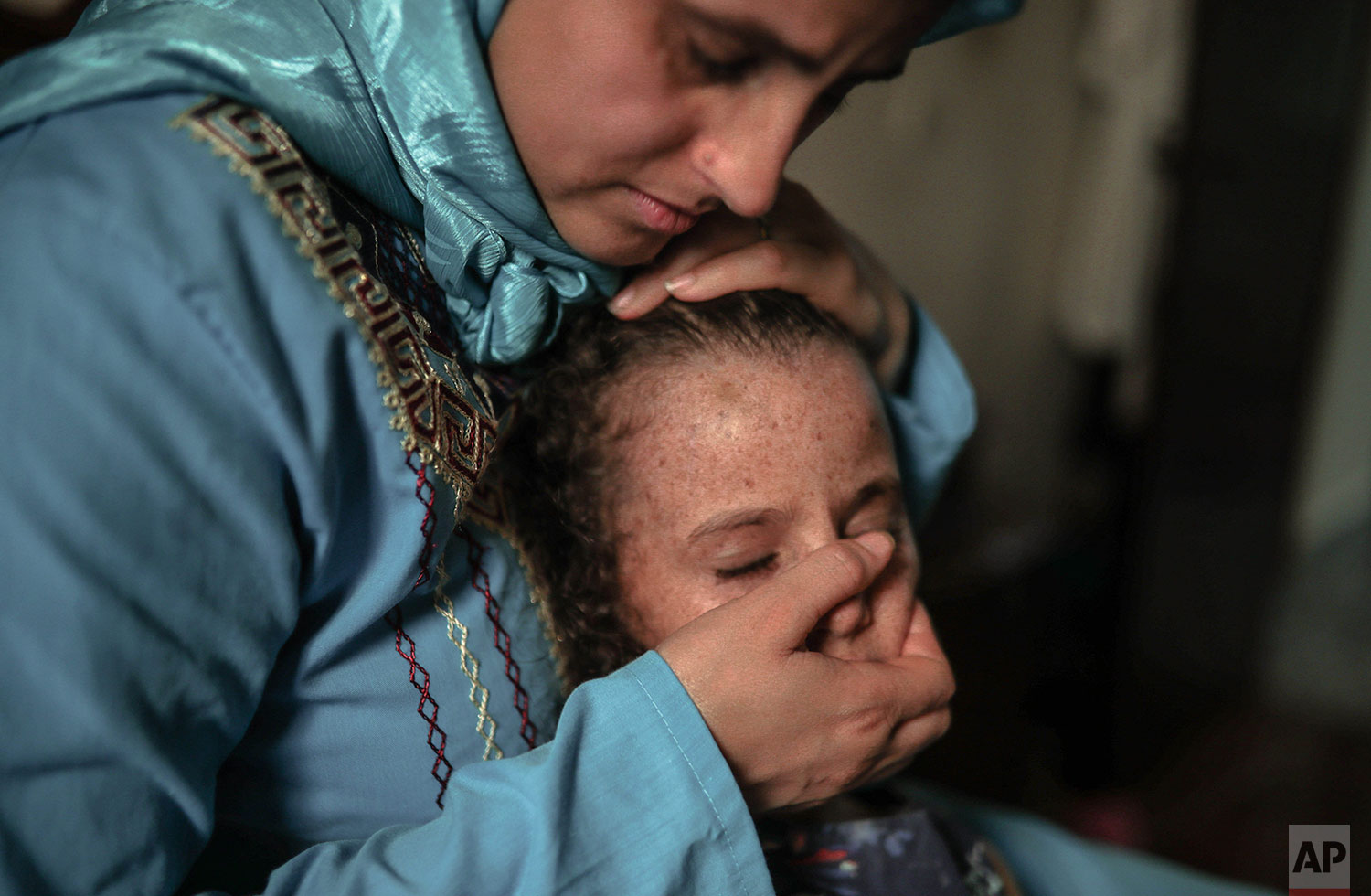 In this Tuesday, July 23, 2019 photo, Maria El Maroufi, shares a moment with her 6 year old daughter Romaisae who is affected by a rare disorder called xeroderma pigmentosum, or XP, in their home in the town of Sale, near Rabat, Morocco. (AP Photo/Mosa'ab Elshamy)