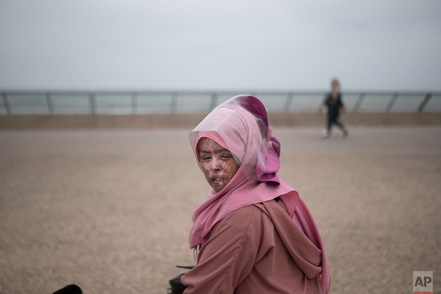 In this Wednesday, July 24, 2019 photo, Fatimazehra Belloucy, 25, a woman affected by a rare disorder called xeroderma pigmentosum, or XP, poses for a portrait in Casablanca, Morocco. . (AP Photo/Mosa'ab Elshamy)