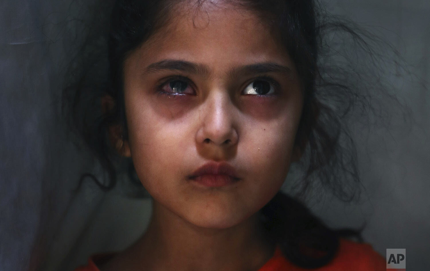 Muneefa Nazir, 6, a Kashmiri girl whose right eye was hit by a marble ball shot allegedly by Indian Paramilitary soldiers on Aug. 12, stands outside her home in Srinagar, Indian controlled Kashmir, Tuesday, Sept. 17, 2019. (AP Photo/Mukhtar Khan)