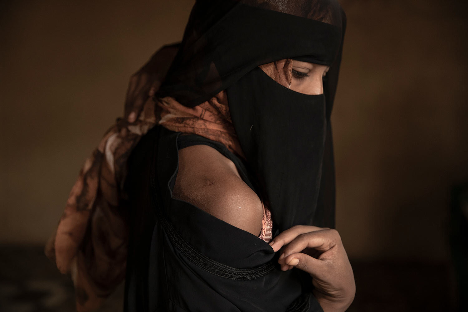 "Ethiopian migrant Eman Idrees shows her shoulder with a wound from torture after being held and abused for eight months in a desert compound known in Arabic as a ""hosh,"" run by an Ethiopian smuggler in Ras al-Ara, Lahj, Yemen. (AP Photo/Nariman El-Mofty)"