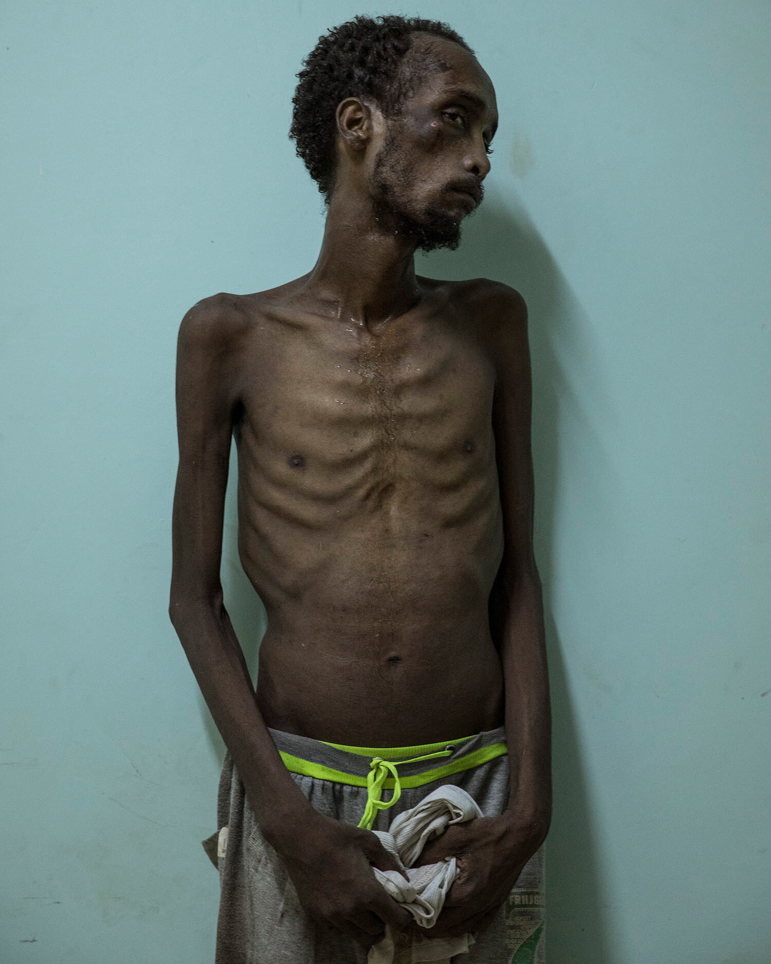 Ethiopian migrant Abdo Yassin, 23, of Oromo descent, stands for a photo at the Ras Alara Hospital, in Lahj, Yemen. Yassin says he was in a hosh locked up and tortured for months because he didn't have the money to pay a ransom. (AP Photo/Nariman El-Mofty)
