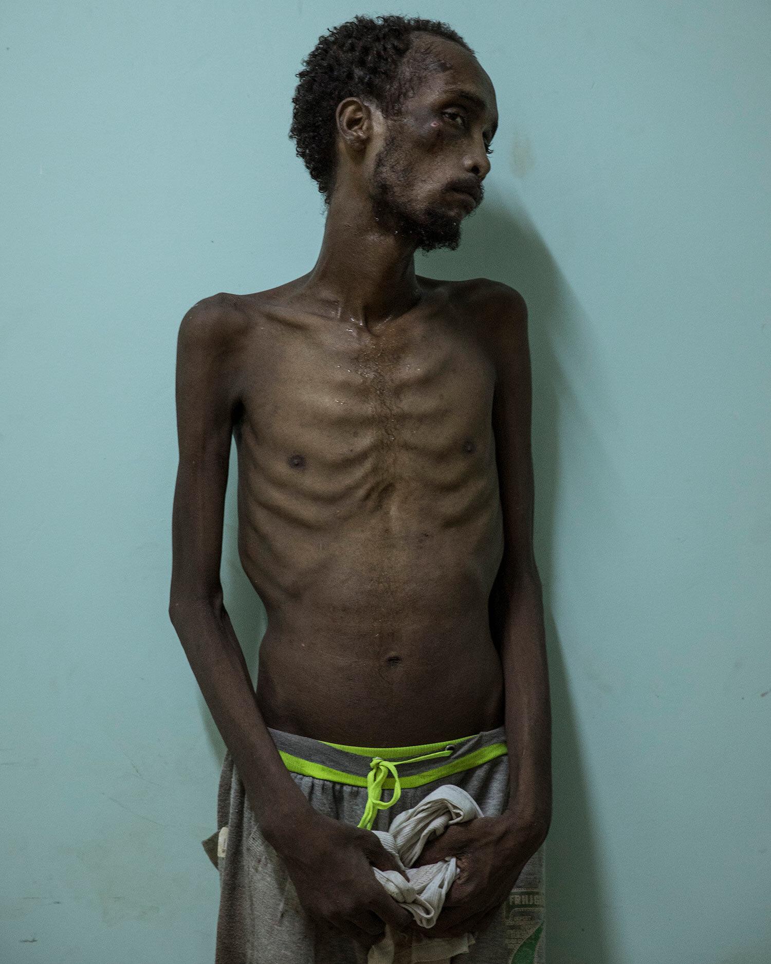 المهاجر الإثيوبي عبده ياسين ، 23 عامًا من أصل أورومو ، يقف لصور في مستشفى رأس علا في لحج ، اليمن.  يقول ياسين إنه كان محتجزاً وعذب لمدة شهور لأنه لم يكن لديه المال لدفع الفدية.  (AP Photo / ناريمان المفتي)