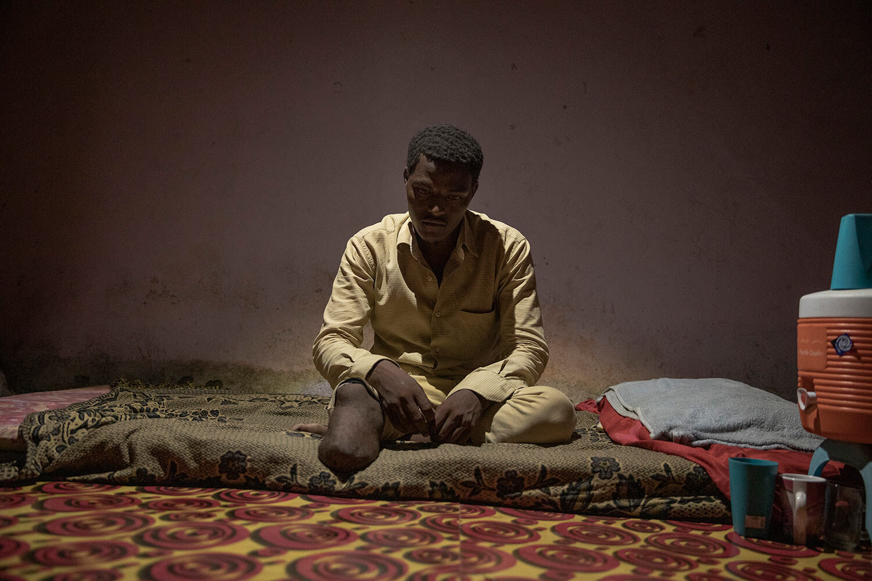 المهاجر الإثيوبي عبد الرحمن طه ، 17 عامًا ، يظهر ساقه المبتورة ، في منزله ، في البساتين ، إحدى عدن ، اليمن.  (AP Photo / ناريمان المفتي)
