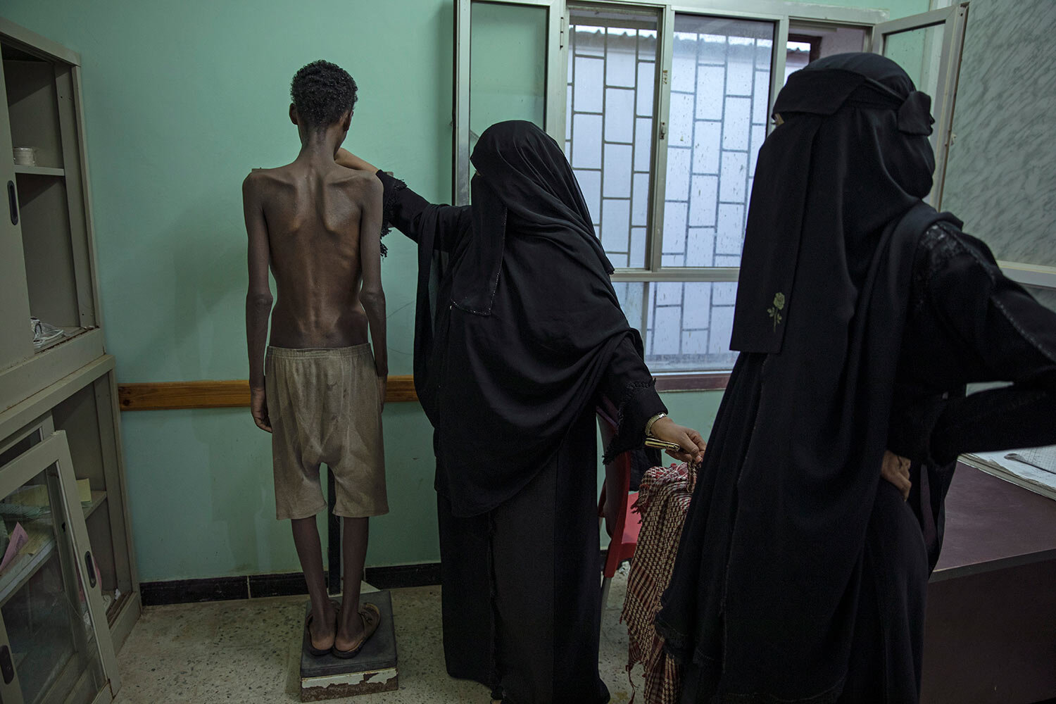 19-year-old Ethiopian migrant Mohammed Hussein, who is severely malnourished from imprisonment by smugglers, stands on a scale at the Ras al-Ara Hospital in Lahj, Yemen. He weighs 31 kilograms (68 pounds). (AP Photo/Nariman El-Mofty)