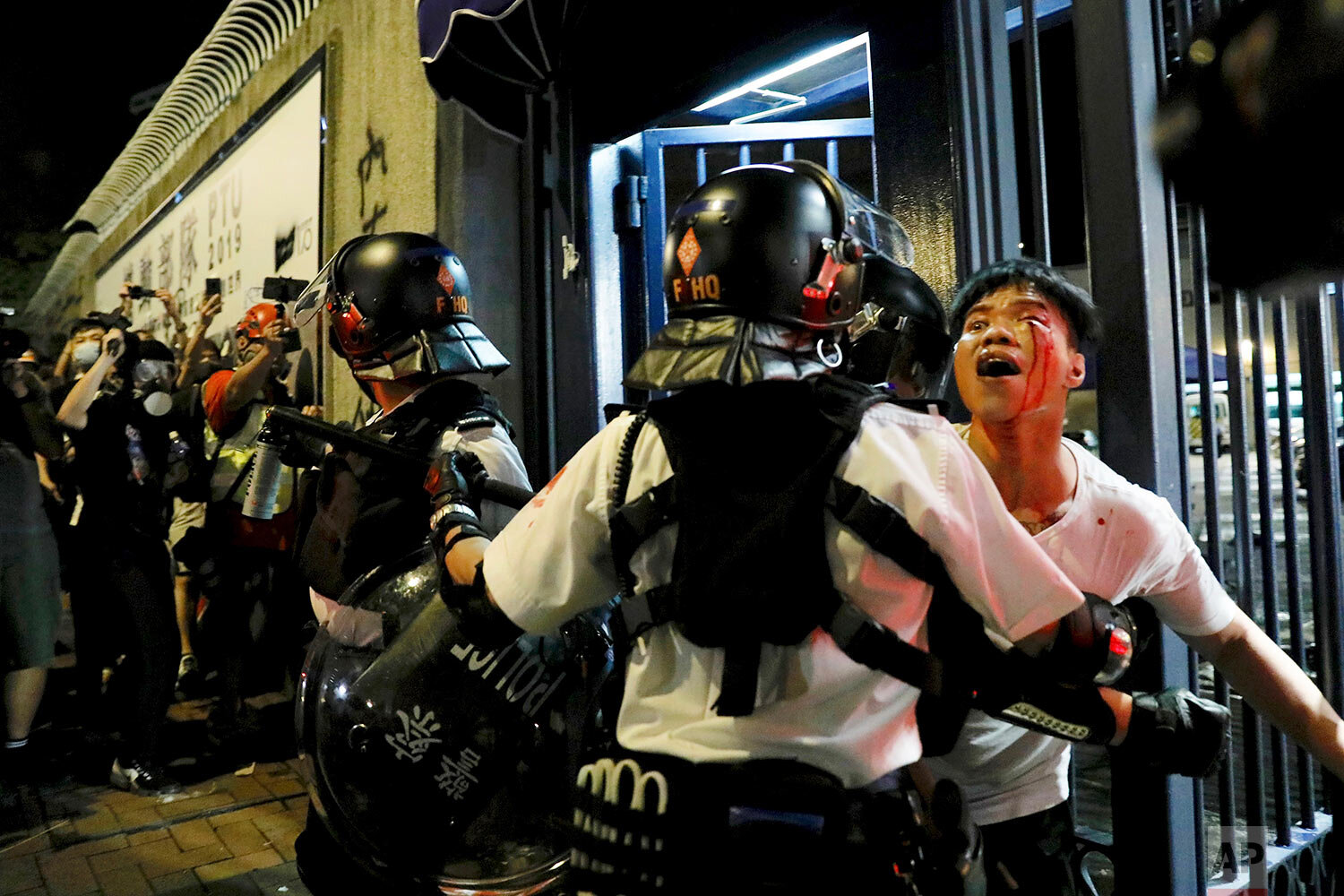 A bleeding man is taken away by policemen after he was attacked by protesters outside Kwai Chung police station in Hong Kong on July 31, 2019. (AP Photo/Vincent Yu)