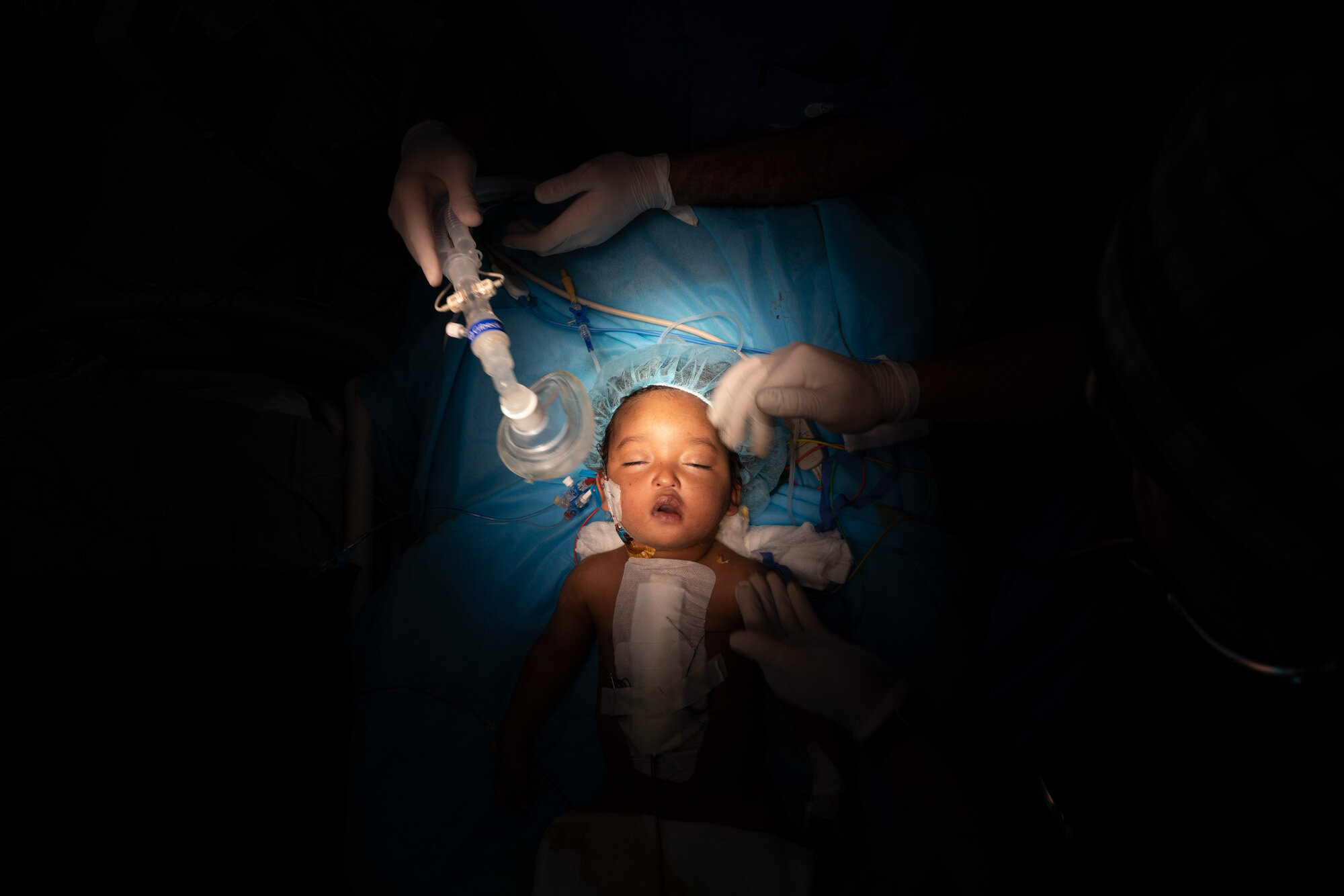 One-year-old Yazan has his oxygen mask removed after heart surgery at the Tajoura National Heart Center in Tripoli, Libya, on Feb. 27, 2020. Yazan's perilous trek from his small desert hometown culminated in a five-hour surgery. He is one of 1,000 children treated by Dr. William Novick's group since it first came to Libya after the 2011 uprising. (AP Photo/Felipe Dana)