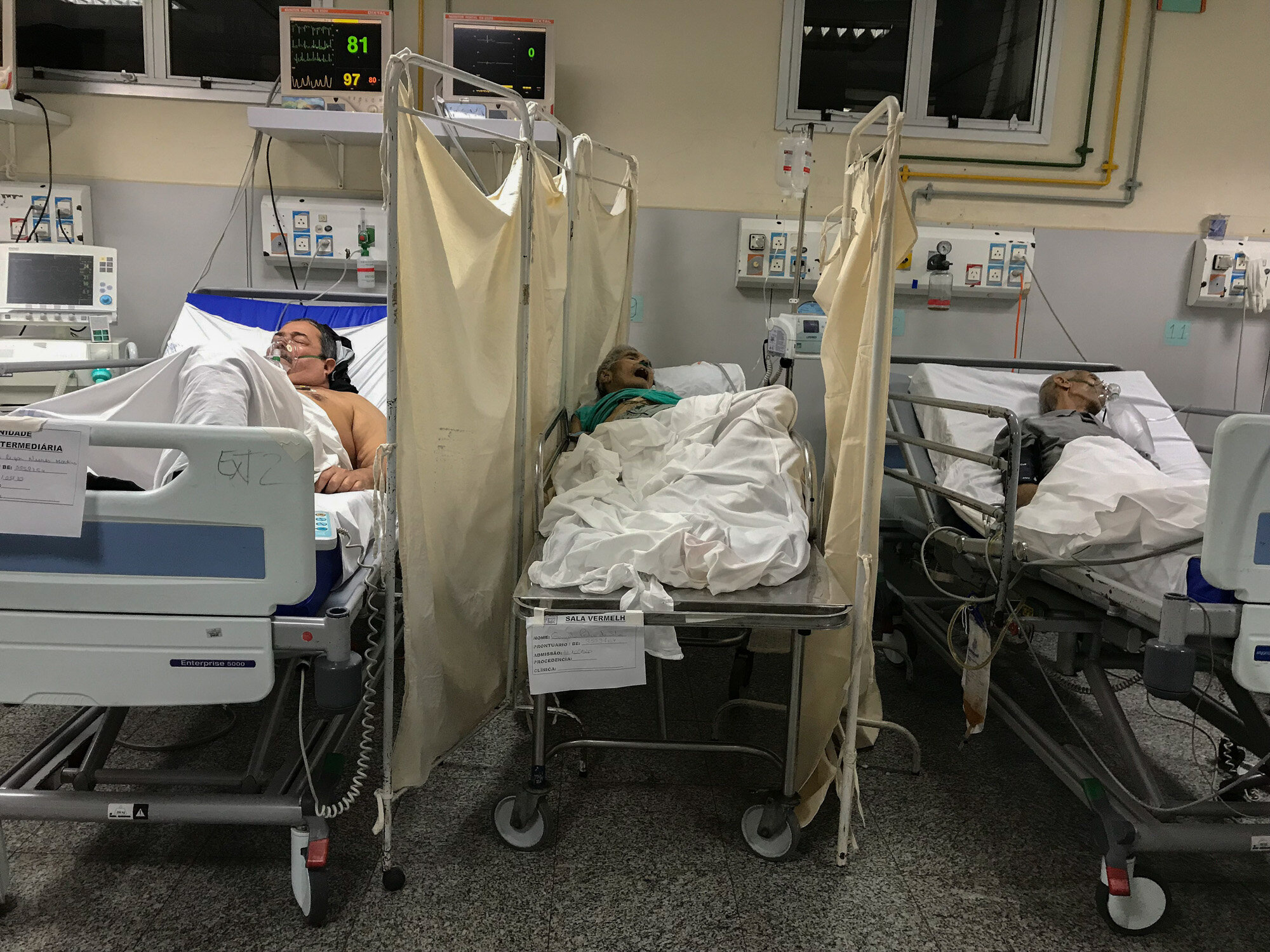 A patient who died from COVID-19 lies on a table between two other patients infected with the coronavirus at the Salgado Filho Municipal Hospital in Rio de Janeiro, Brazil, on May 24, 2020. (AP Photo/Leo Correa)