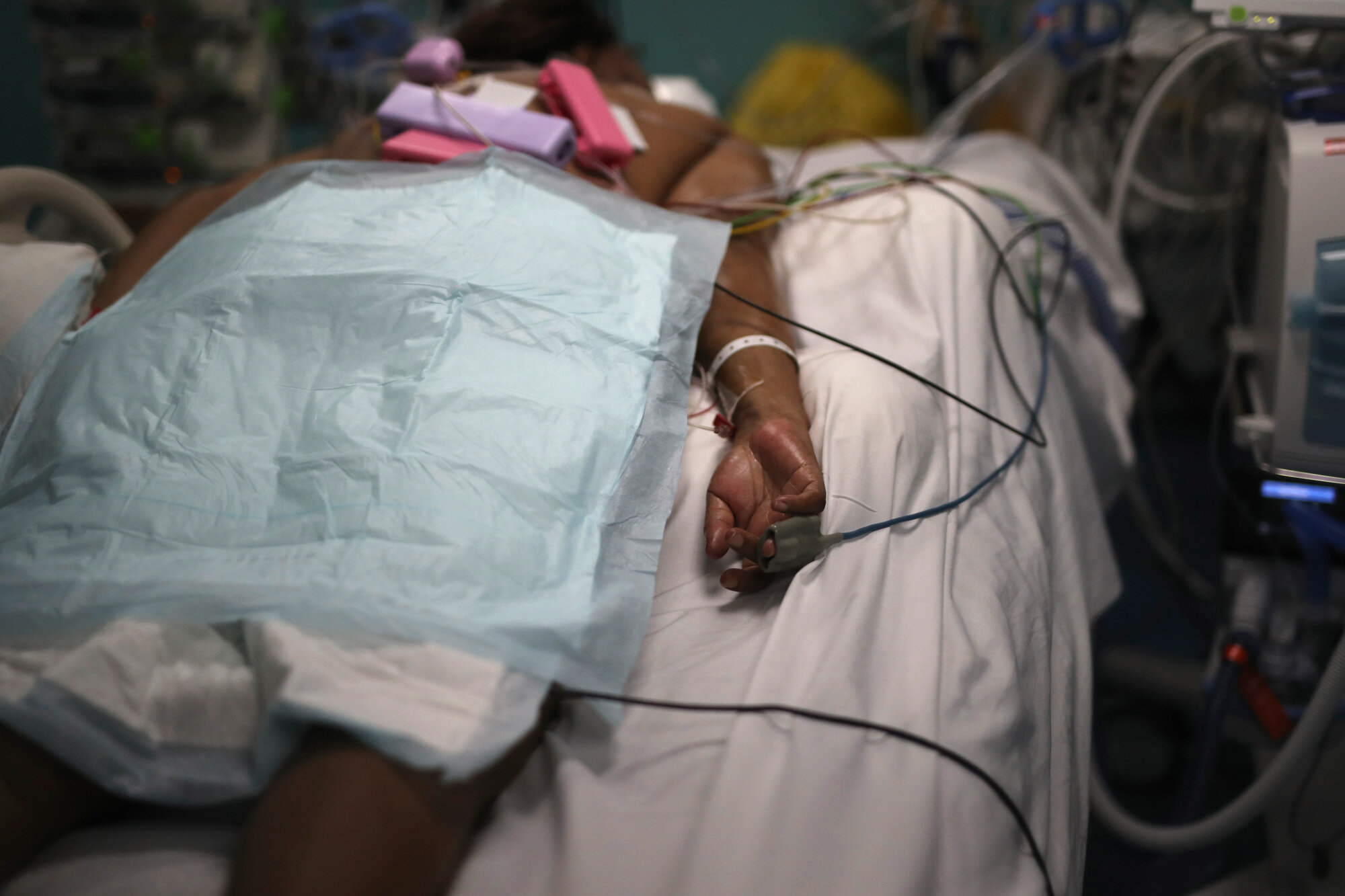 A patient afflicted with COVID-19 lies on a bed in a hospital in Marseille, France, on Sept.10, 2020. (AP Photo/Daniel Cole)