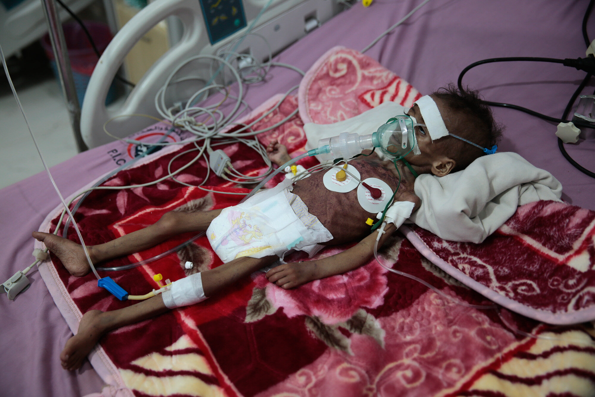 A malnourished girl, Rahmah Watheeq, receives treatment at a feeding center at Al-Sabeen hospital in Sanaa, Yemen, on Nov. 3, 2020. Two-thirds of Yemen's population of about 28 million people are hungry, and nearly 1.5 million families currently rely entirely on food aid to survive, with another million people expected to fall into crisis levels of hunger before the year's end, according to aid agencies working in Yemen. (AP Photo/Hani Mohammed)