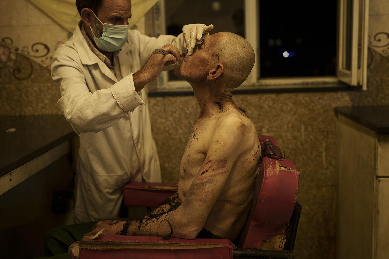 Uživatelé drog zadržení během náletu Talibanu se oholí po příjezdu do avicenské lékařské nemocnice pro protidrogovou léčbu v afghánském Kábulu v sobotu 2. října 2021. (AP Photo/Felipe Dana)
