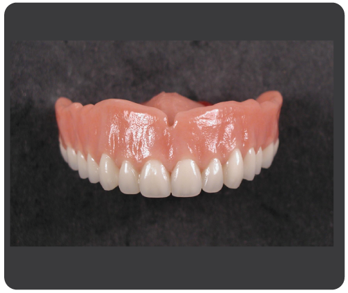 diamond-d-2-dentures.png