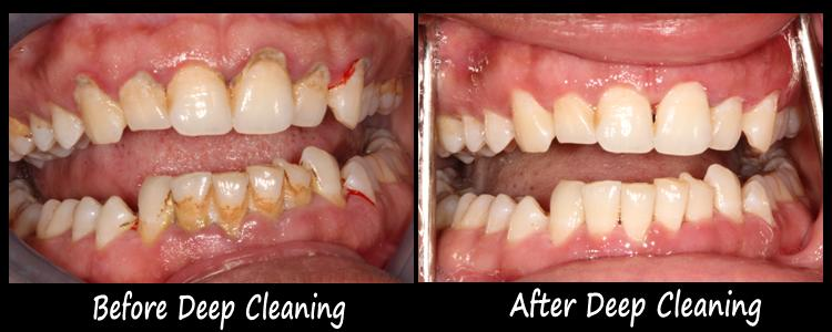 deep-cleaning-before-and-after-pictures.jpg