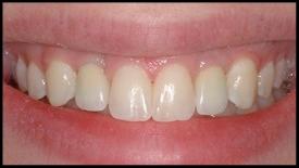 Dr. Predmore placed porcelain crowns on dental implants