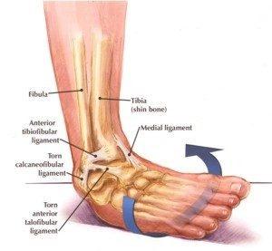 chronic-ankle-instability-300x277.jpg
