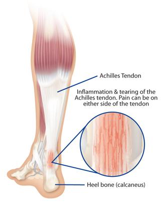 AchillesTendon (1).jpg