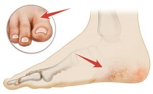 Dry-Cracked-Feet-300x185.jpg