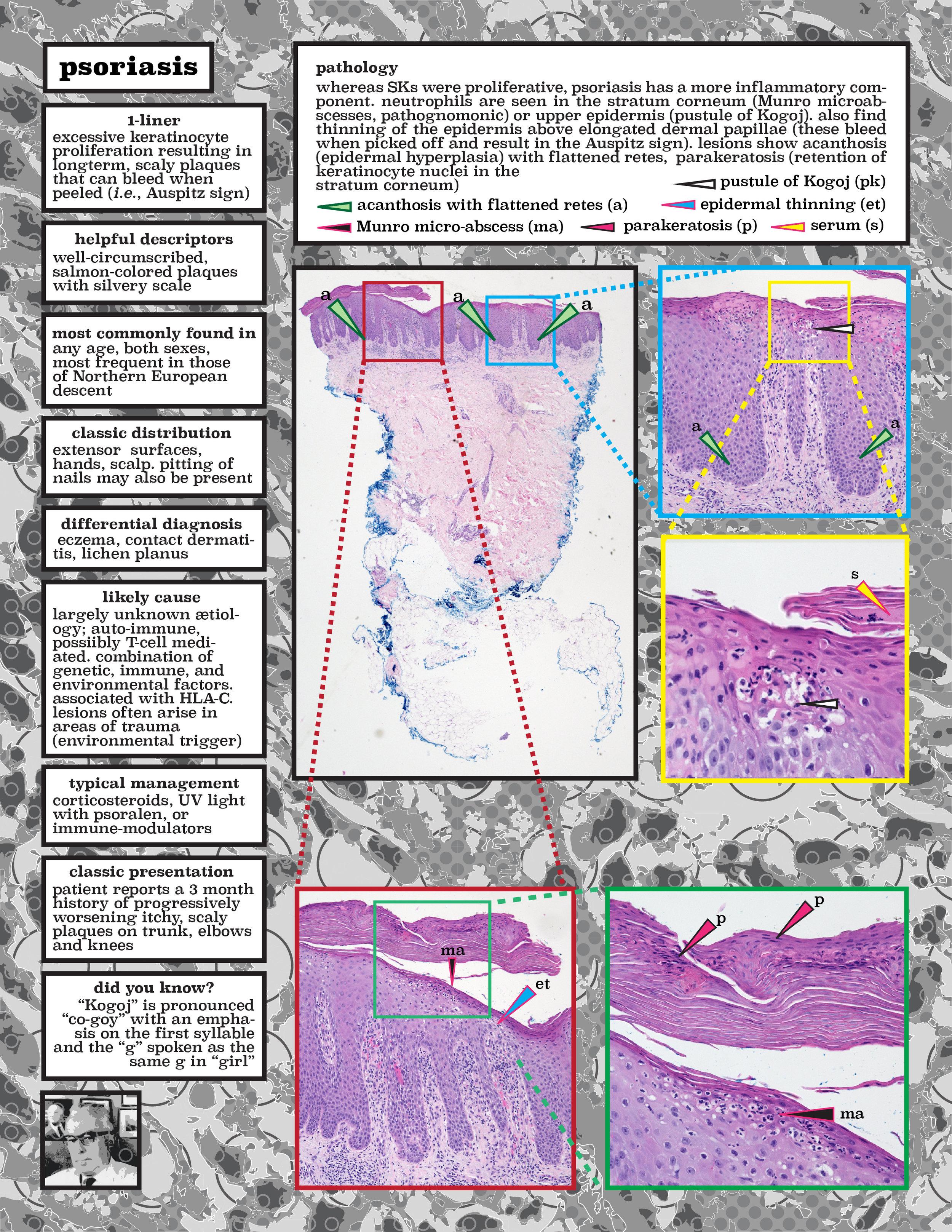 4 psoriasis.jpg