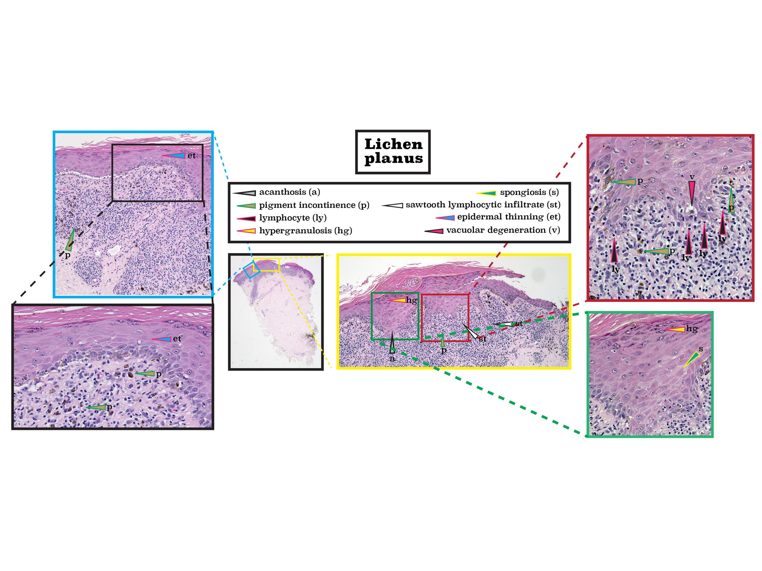 Z 5 lichen planus-01.jpg