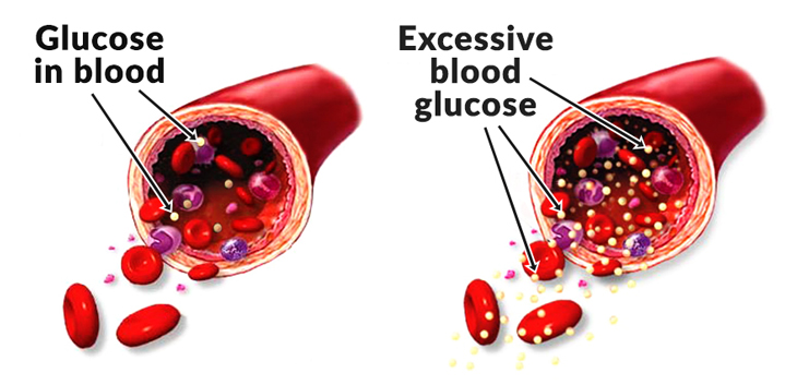 """This is why your blood sugar needs to remain so constant: So your body has access to glucose energy but it doesn't clog up the roadways. That's why this regulation """"dance"""" is so important."""
