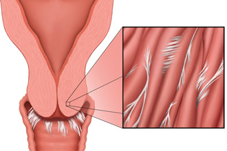 """cervical scarring can be hidden within the tissue and only felt with a finger as """"hard"""""""
