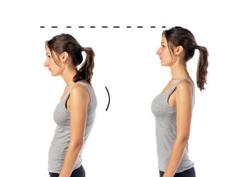 Left: woman has kyphosis, Right: woman hides kyphosis by thrusting her ribs forward.