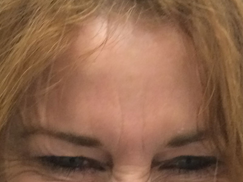 Frown after Wrinkle Relaxer treatment