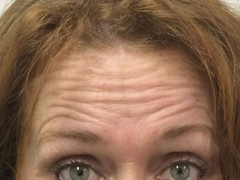 Forehead before   Wrinkle Relaxer treatment