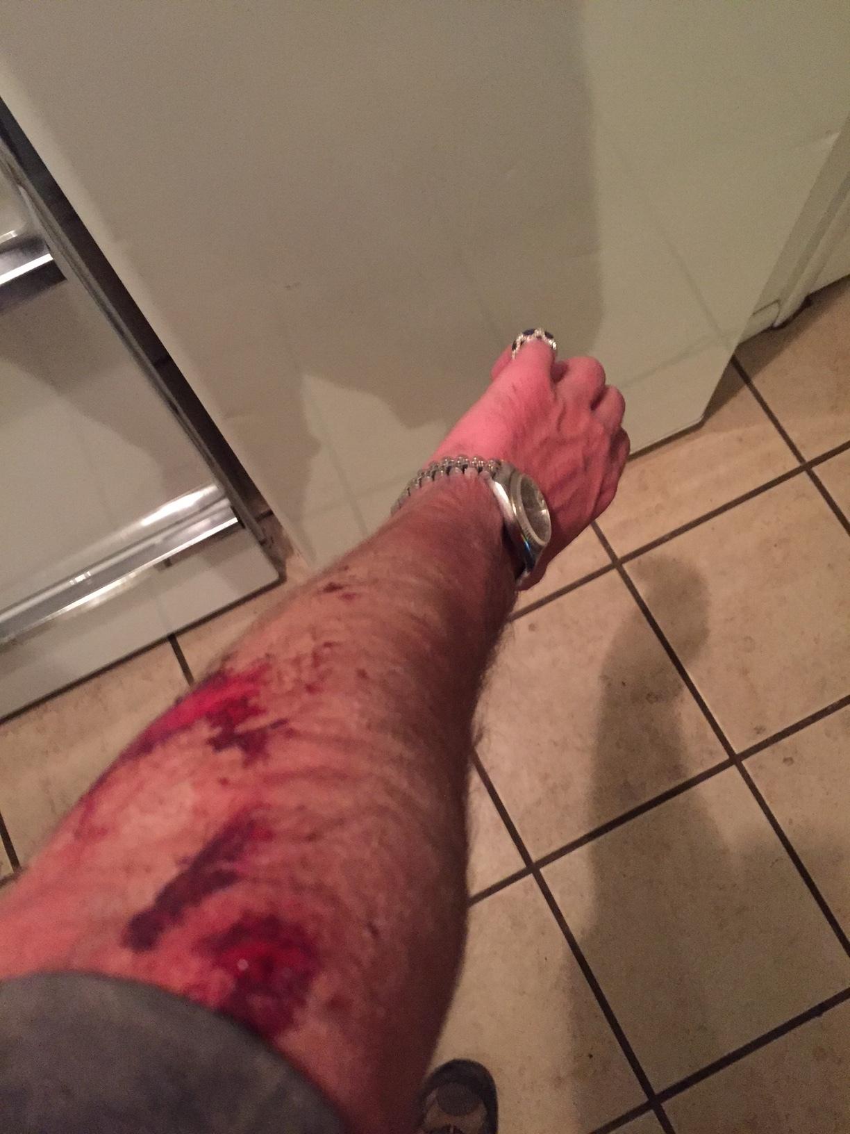 injury2.JPG