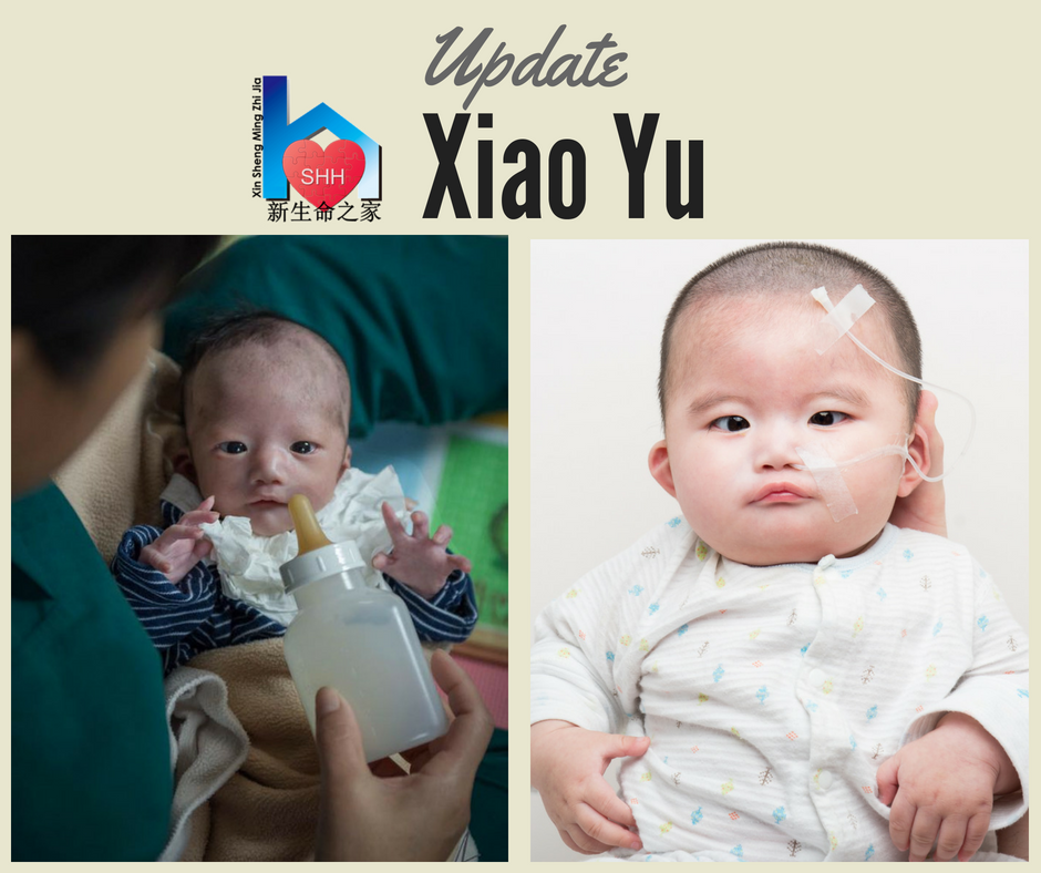 Baby Sponsorship    Xiao Yu is 8 months old now. He had to stay in the hospital recently due to his fast breathing. He has started to make more eye contact and seems to be trying to smile when he is playing. He doesn't have a lot facial expression due to facial paralysis. Also, he is going to the hospital to get a new cast put on each week for his club feet. It is possible that he will need a total of 4-8 castings. Thank you for your ongoing prayers and sponsorship of Xiao Yu.   Monthly sponsorship opportunity of $800.
