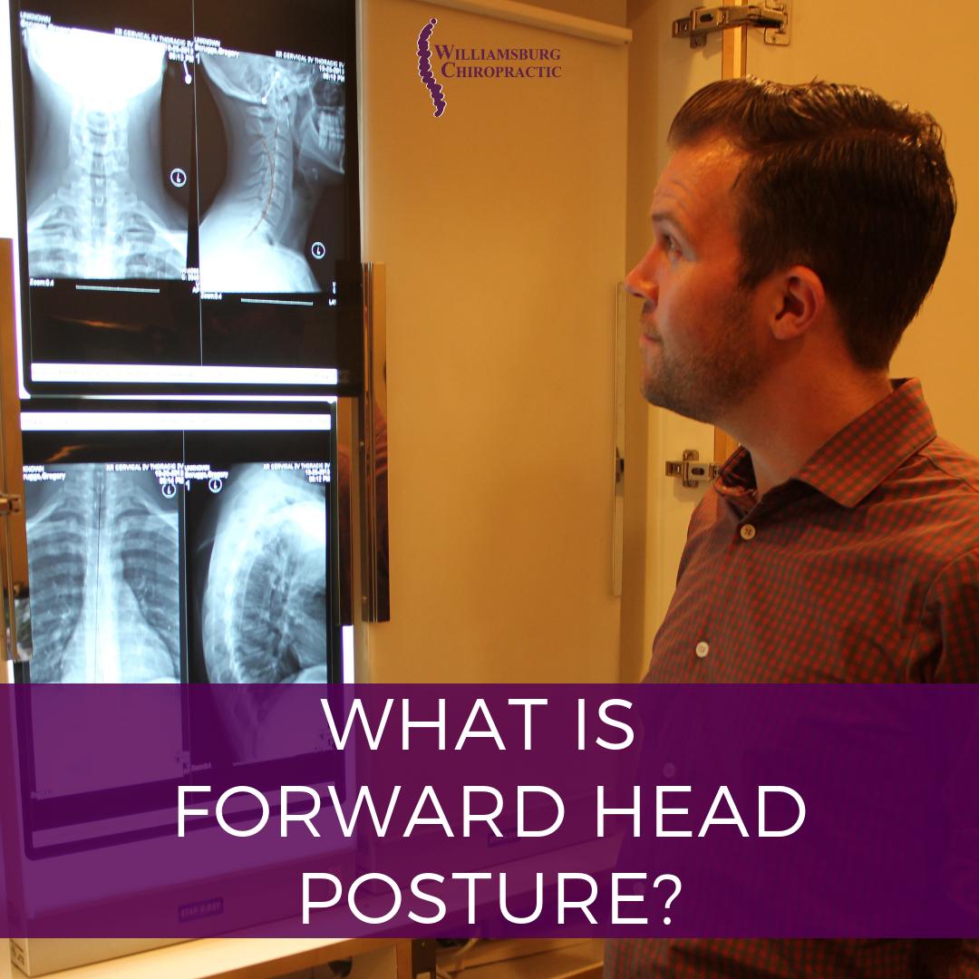 williamsburg-chiropractic-forward-head-posture.png