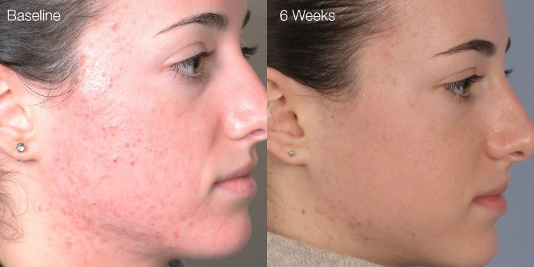 Acne results after 4 treatments.
