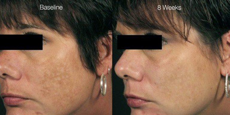 Melasma pigmentation results after 5 treatments.