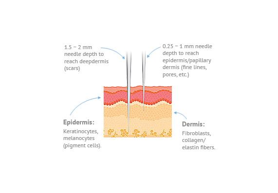 epidermis-image.jpg