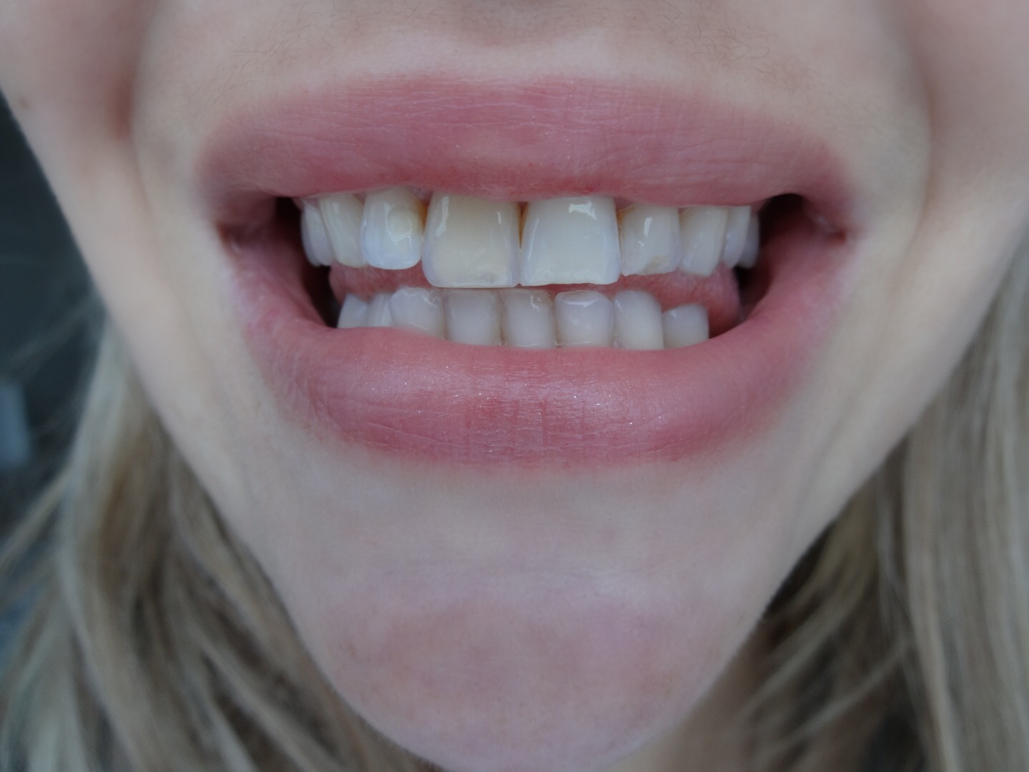 http://www.smilebrilliant.com/articles/benifits-of-choosing-custom-fitted-teeth-whitening-trays#stylistsharon
