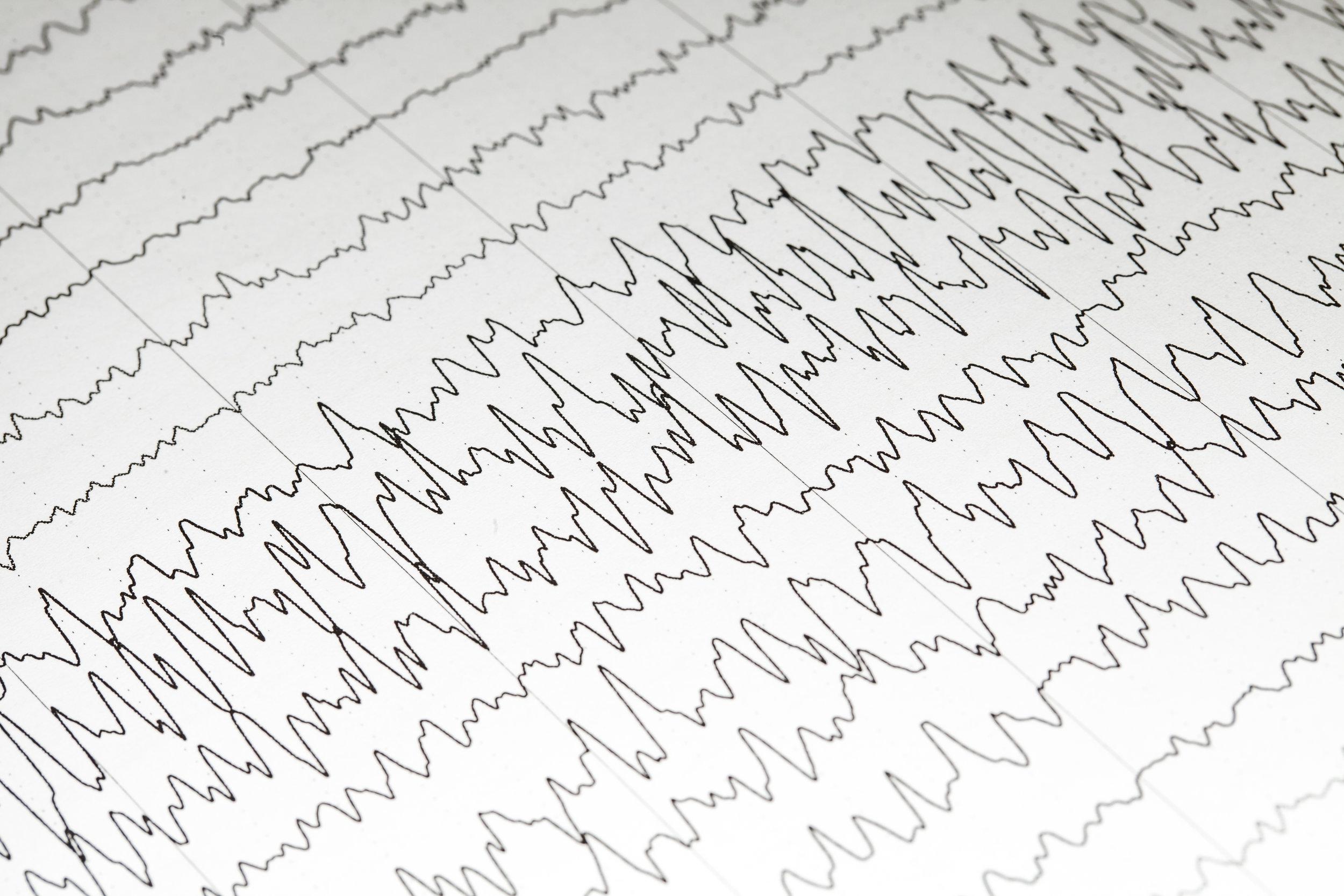 Electroencephalogram (EEG) during a siezure