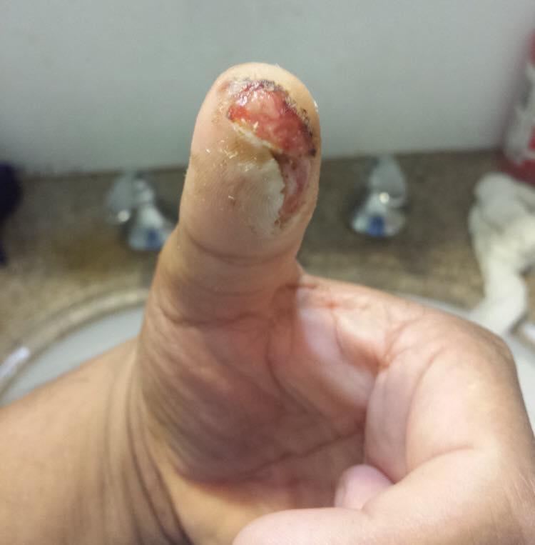 fingerCut-8.jpg
