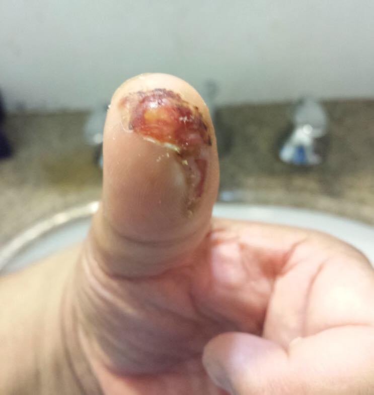 fingerCut-9.jpg