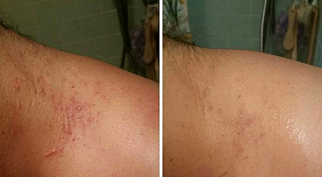 Staph infection  before  and  48 hours after  using Biocence