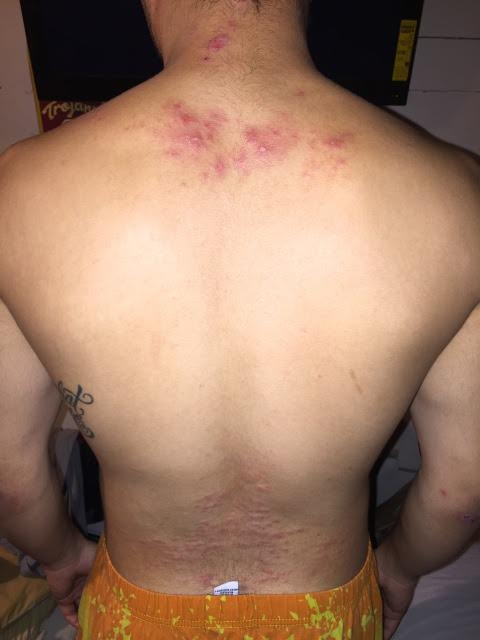His back  before.