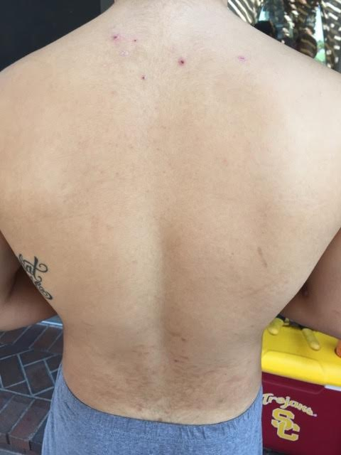 His back after.