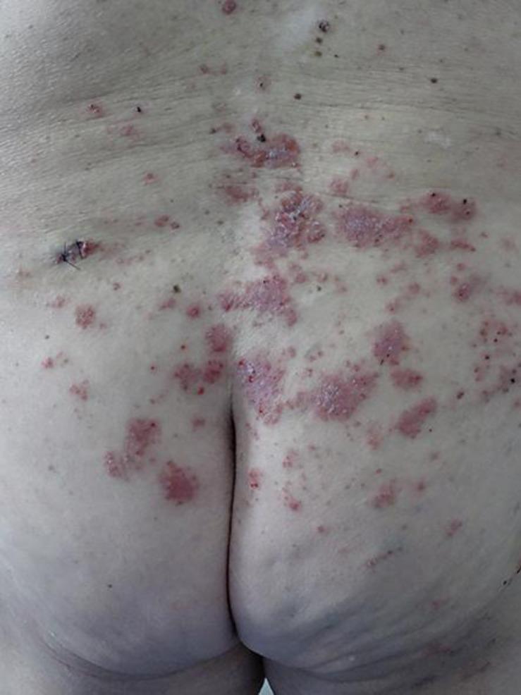 Extensive Darier Disease Successfully Treated with Doxycycline Monotherapy. Sfecci A el al. Case Rep Dermatol, 2015 vol. 7 (3) pp. 311-315.