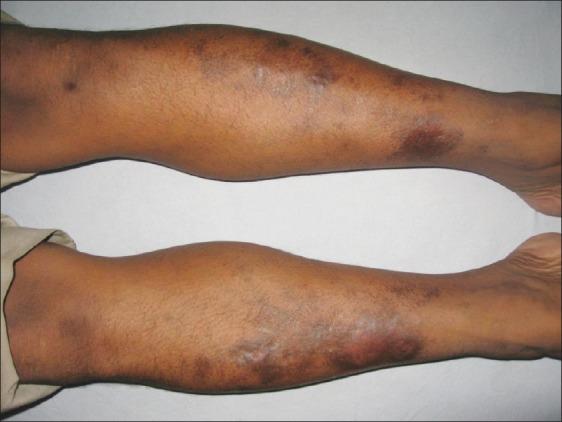 Púrpura anular telangiectoide de Majocchi .Sharma L et al. Clinicoepidemiological study of pigmented purpuric dermatoses. Indian Dermatol Online J. 2012 Jan-Apr; 3(1): 17–20.
