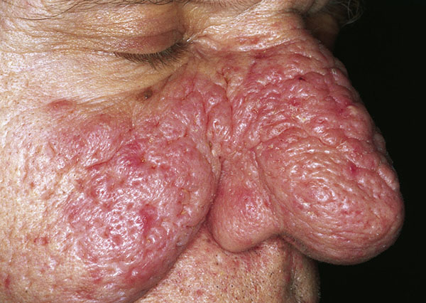 Rinofima. Cutaneous lesions of the nose. Sand M et al. Head Face Med. 2010 Jun 4;6:7.