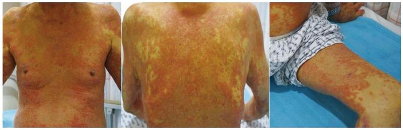 Gyu Choi et al. Allopurinol-induced DRESS syndrome mimicking biliary obstruction. Clin Mol Hepatol. 2014 Mar; 20(1): 71–75.