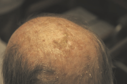 Queratosis actínica. Fuente: Wikipedia Creative Commons