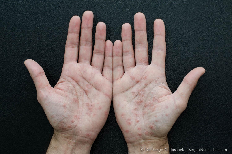 Dishidrosis. Fuente: Wikipedia Creative Commons
