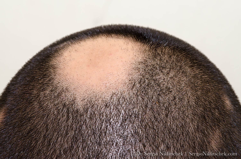 Alopecia-areata.jpg