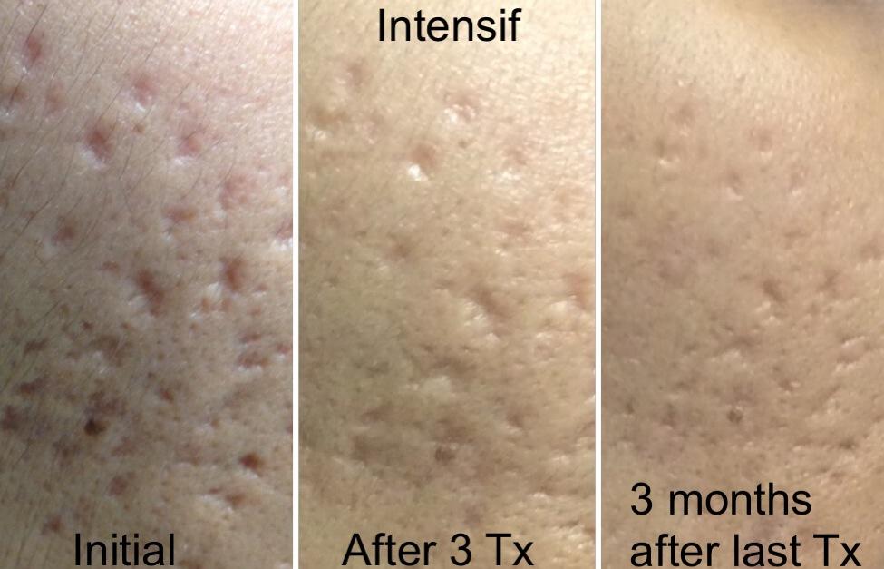 acne10.jpg